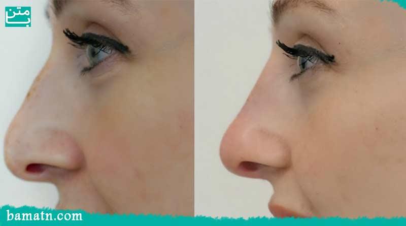 انحراف بینی و جراحی بینی در حالت درمانی و زیبایی