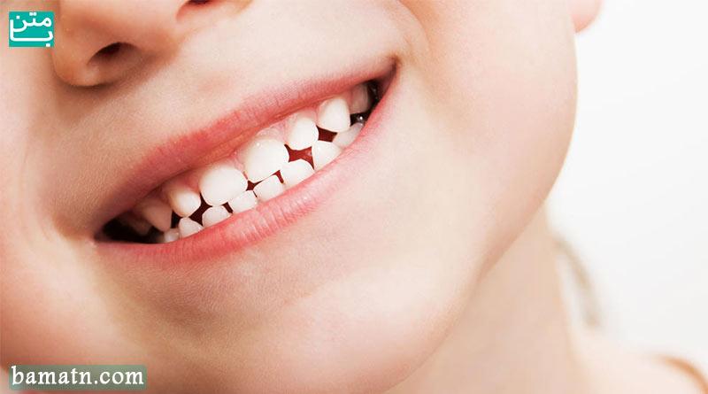 نگهداری دندان کودکان و دندان شیری و دائمی کودک