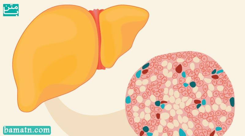 علت چرب شدن کبد چیست؟ / پیشگیری و درمان کبد چرب در طب سنتی